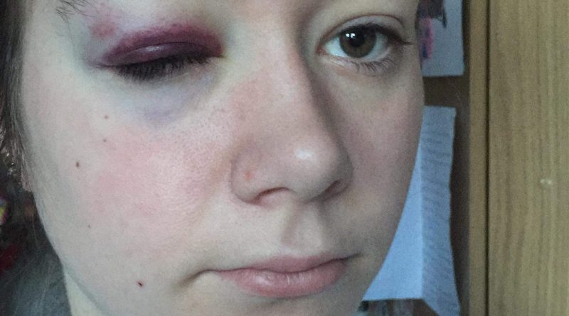 Attacked student warns of the dangers of walking home late at night