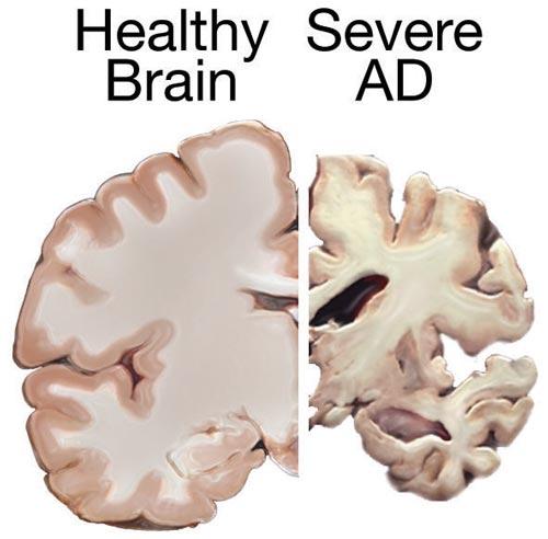 Lack of sleep is killing your brain!